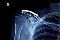 A Repaired Collarbone